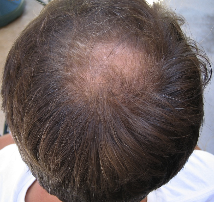 How To Prevent Thinning Hair