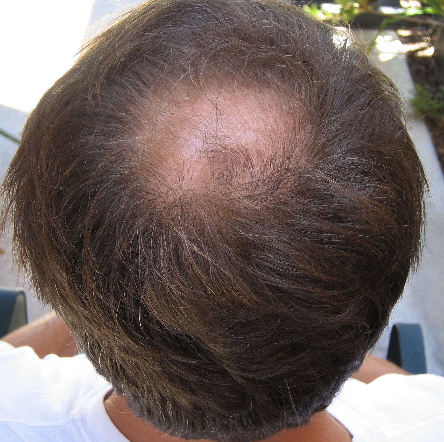 azelaic acid hair loss from steroids